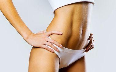 Ultrazvuková a radiofrekvenční liposukce