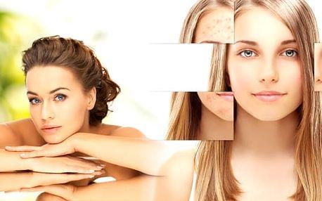 Kosmetické ošetření problematické aknózní pleti s vybranými přírodními produkty. 45 minutová procedura s hloubkovým a účinným čistěním ultrazvukovou špachtlí vaši pleť projasní a vyčistí. Salon Luční kosmetika v Plzni se těší na Vaši návštěvu.