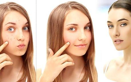 Zbavte se akné. Péče o obličej a dekolt zaměřená na akné ve Studiu Olis, v novém salonu krásy v samém srdci pražských Vinohrad. O Vaši problematickou pleť se postaráme profesionálně.