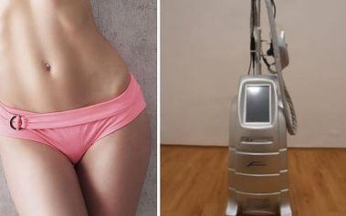 50min. kryolipolýza - bezbolestná přístrojová liposukce: 1 nebo 3 ošetření