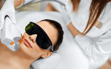 50min. kosmetické ošetření proti akné, vráskám v centru estetické medicíny- až 6 ošetření