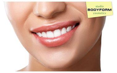 Šetrné bělení zubů neperoxidovým gelem ve studiu Bodyform cosmetics v Praze