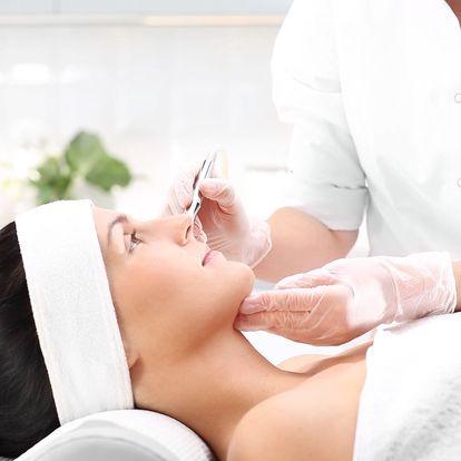 Laserové odstranění žilek na nohou či obličeji