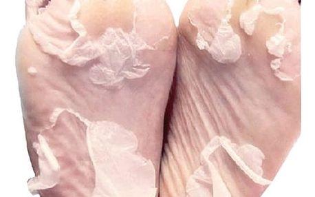 Exfoliační maska na nohy