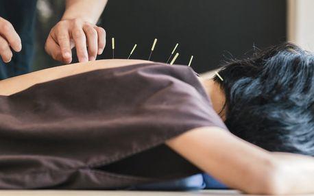 Akupunktura u lékařky MUDr. Renaty Szabové