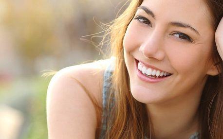 Ordinační bělení zubů pro zářivý úsměv