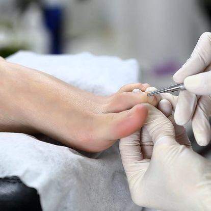 Medicinální suchá pedikúra pro diabetiky