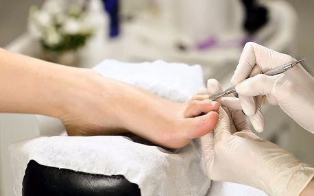 Footlogix – medicinální bezskalpelová pedikúra