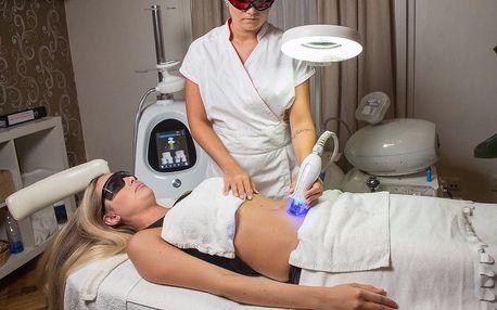 Modrý laser: redukce tuku nebo lifting obličeje