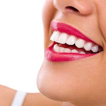 40–80 minut neperoxidového bělení zubů ve Studiu Step v Praze