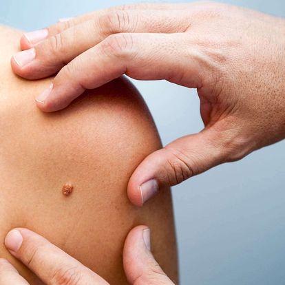 Laserové odstranění znamének, bradavic a výrůstků bez bolesti a jizviček
