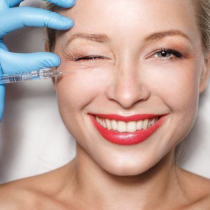 Pleť bez vrásek: mezoterapie v Body&Face clinique