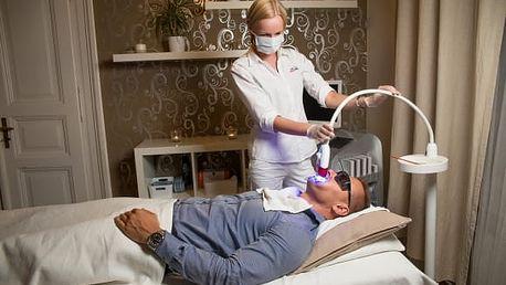 40min. neperoxidové bělení zubů vč. remineralizace