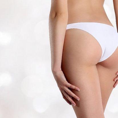 Bezbolestná liposukce s viditelným účinkem