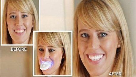 Bělící sada na zuby 20 minute