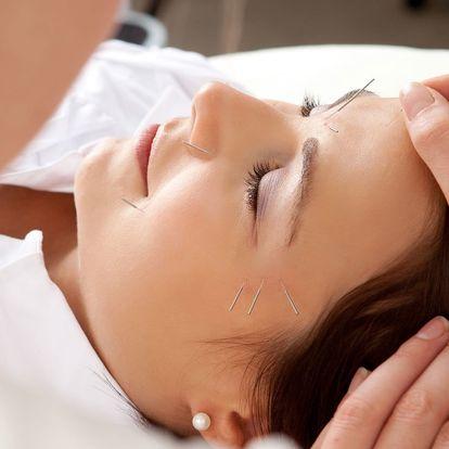 Omlazení pleti pomocí akupunktury