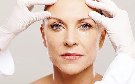 HIFU Ultheralift - ošetření očního okolí, nosoretních vrásek a vrchní části krku - celý obličej.