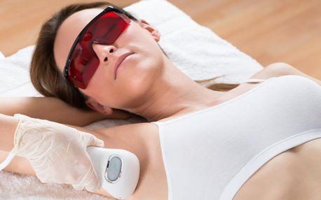 Trvalá epilace chloupků lékařským laserem