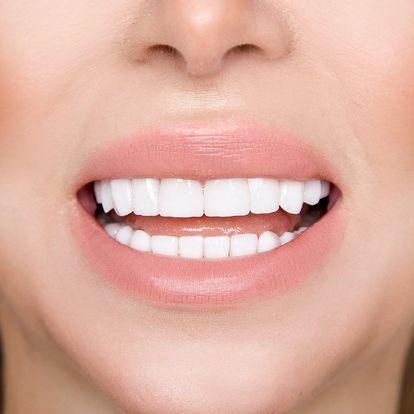 Zářivý úsměv bez peroxidu: bělení Star White
