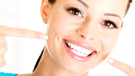 Ordinační bělení zubů metodou Beyond