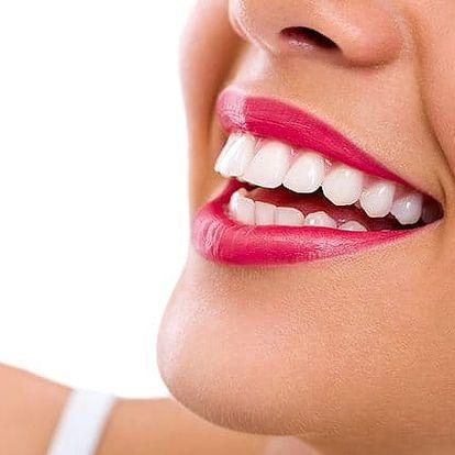 40–80 minut neperoxidového bělení zubů s remineralizací ve studiu Step v Praze