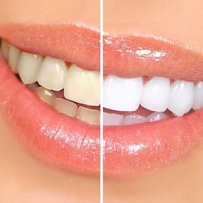 30min. bezperoxidové bělení zubů laserem