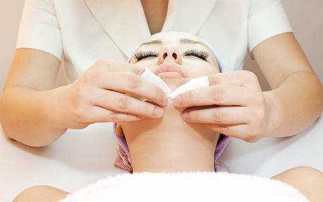 1× či 3× ošetření peelingem, vhodné při potížích s akné