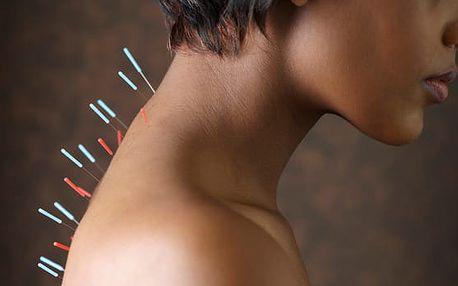 30min. bezbolestná akupunktura na Praze 9