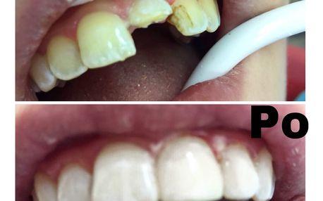 Univerzální nanokompozit Filtek™ Ultimate s restaurováním zubů