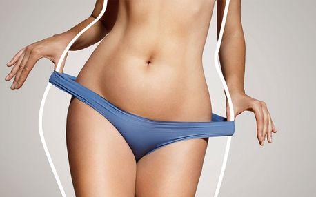 Hubnutí pomocí Thermo-kryolipolýzy a lymfodrenáže
