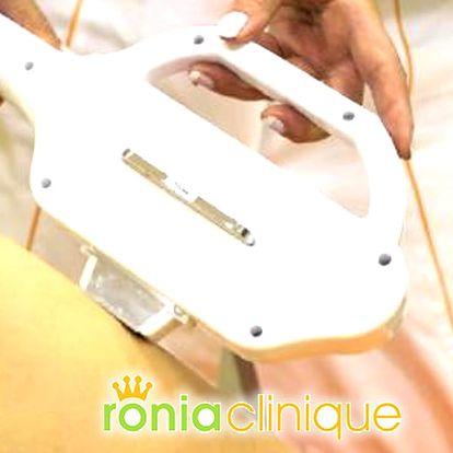 Ošetření jizev, strií i vrásek pomocí 3D technologie - vraťte svému tělu bezchybný vzhled.