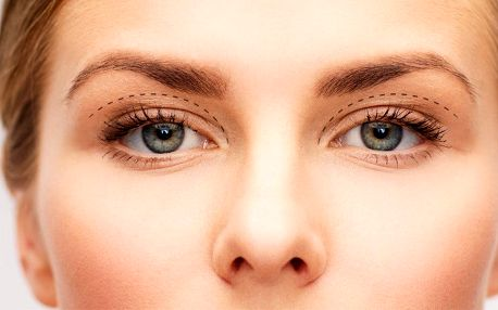 Plastická operace očních víček v Očním centru