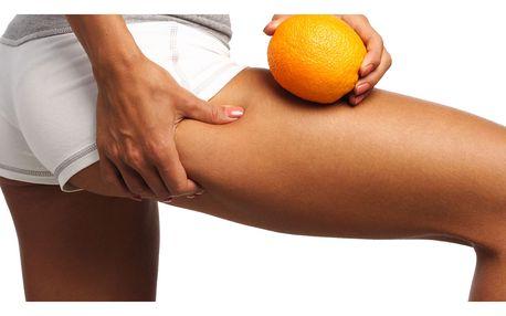 94% sleva kryolipolýzu či termo-kryolipolýzu + lymfodrenáž