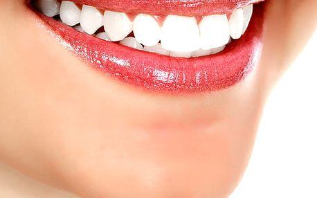 Neperoxidové bělení zubů s možností remineralizace zubní skloviny ve Studiu Step v centru Prahy.