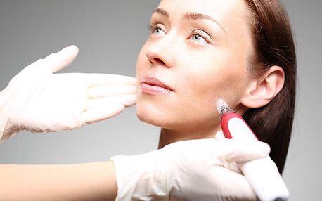 Jedno až tři ošetření tváře laserovou procedurou microneedling v salonu Sia Bello v Brně