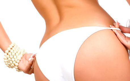 Hubnoucí balíček - ultrazvuková liposukce 30 min. + 35 min. lymfodrenáž.