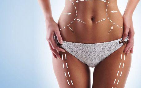 Bezbolestná liposukce vč. přístrojové lymfodrenáže