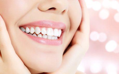 Pro zářivý úsměv: Neperoxidové bělení zubů