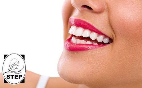2x 15 minut neperoxidového bělení zubů s remineralizací ve studiu Step v Praze