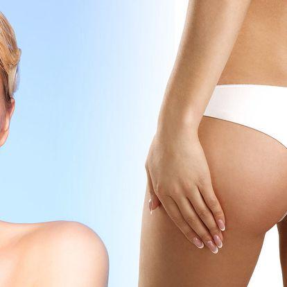 Až 88% sleva na nasávací kryolipolýzu včetně lymfodrenáže