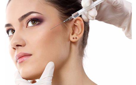 Omlazení pokožky injekční mezoterapií