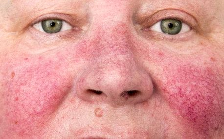 Kosmetický olej na rozšířené cévky na obličeji 50 ml