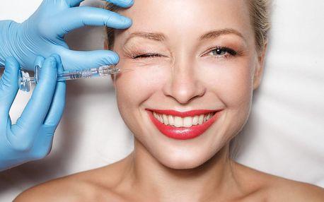 Injekční terapie prvních vrásek blanchingem