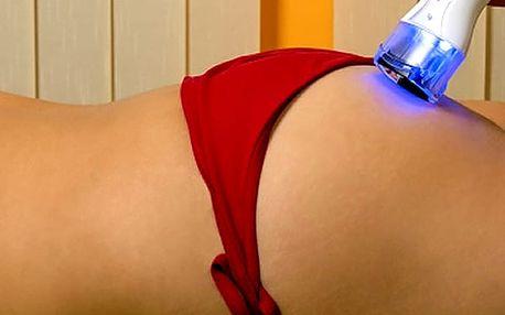 Liposukce Blue laser Energy Wave od vývojářů z Kanady. Vhodné pro ženy i muže od 18 let.