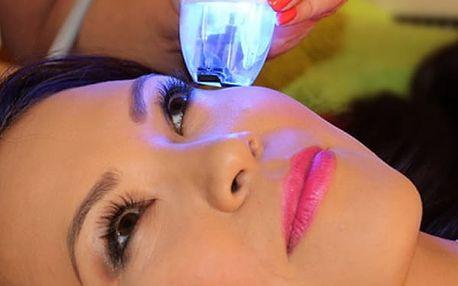Vyhlazení očního okolí a pozvednutí očních víček - revoluční omlazení bez skalpelu v Ronia Clinique.