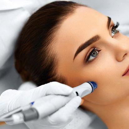 Kosmetické ošetření: Diamantová mikrodermabraze