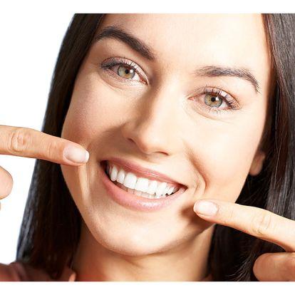 Ordinační bělení zubů laserem bez peroxidu v Praze