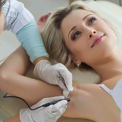 Dejte chloupkům sbohem: Pečlivá epilace laserem