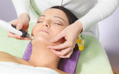 Lifting 1 nebo 3 oblastí mikrojehličkováním + lymfatická masáž