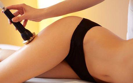 3x ultrazvuková liposukce a radiofrekvence těla